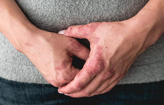psoriasis-psoriasis_arthritis