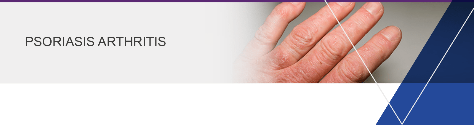 banner-psoriasis-arthritis-verstehen