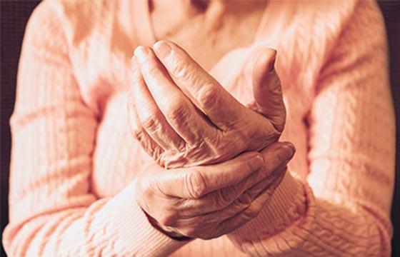 Ältere Hand mit Rheuma